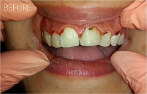 midrand-dentist-before-after